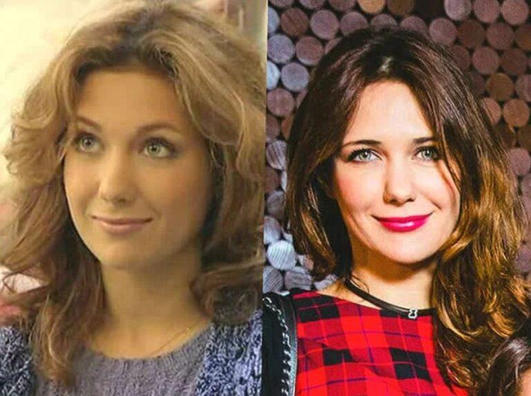До и После: вот какой была и насколько изменилась Екатерина Климова после пластики