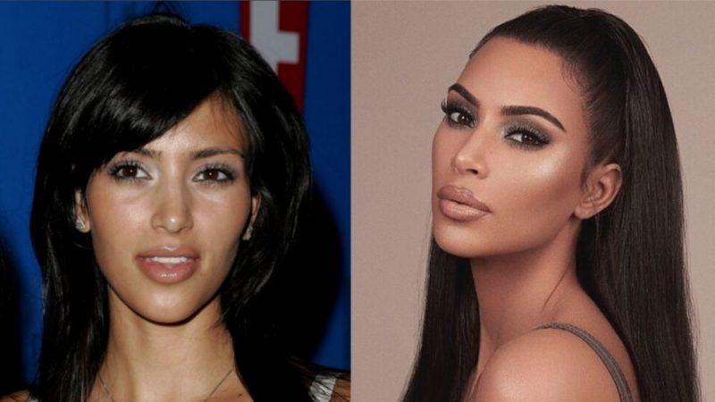Она отбелила кожу и убрала живот: вот как выглядела Ким Кардашьян до пластических операций